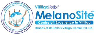 Vitiligo Holla Treatments For Vitiligo
