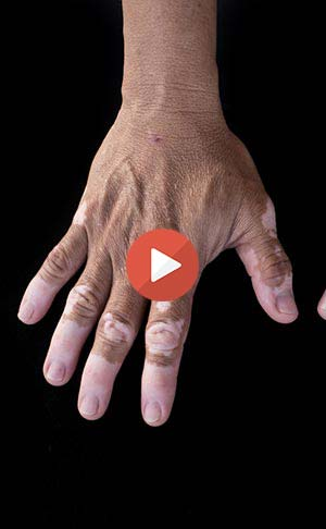 Vitiligo on fingers